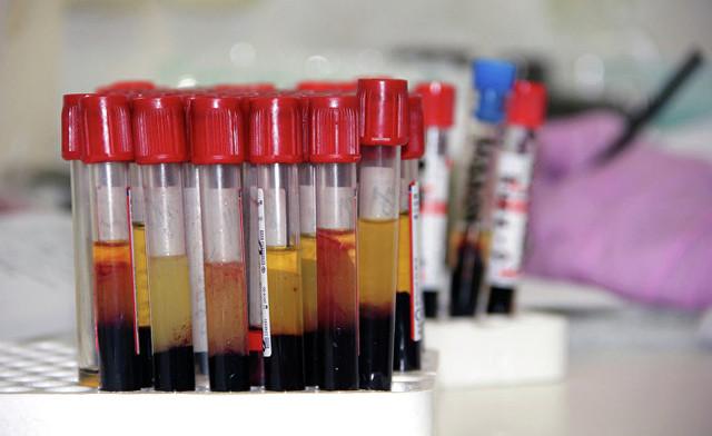Почему у нас разные группы крови?