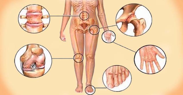 Домашний и 100% натуральный рецепт для облегчения боли в суставах, коленях, пояснице и головных болей!