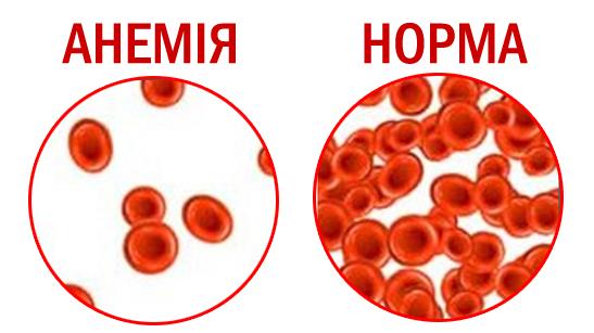 Как лечить анемию народными средствами?