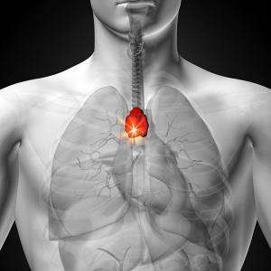 Как определить свой риск возникновения любого рака