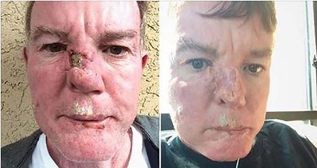 Этот человек нашел собственный метод излечить рак кожи