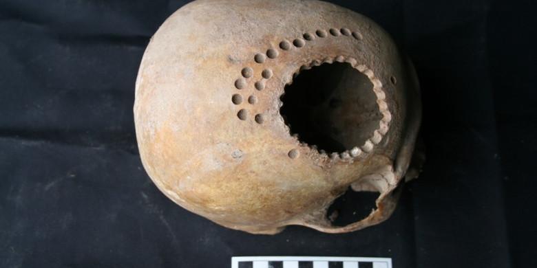 В древнем Перу операции по трепанации делали более умело, чем в США середины 19 века