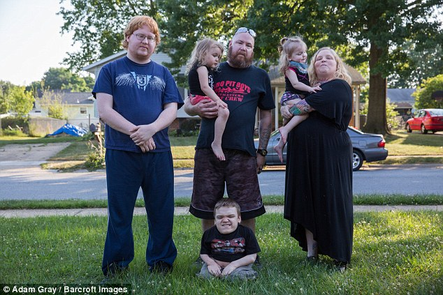 У пары обычного роста 3 из 4 детей родились с редкой формой карликовости