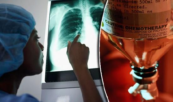 75% врачей в мире отказываются от химиотерапии для себя