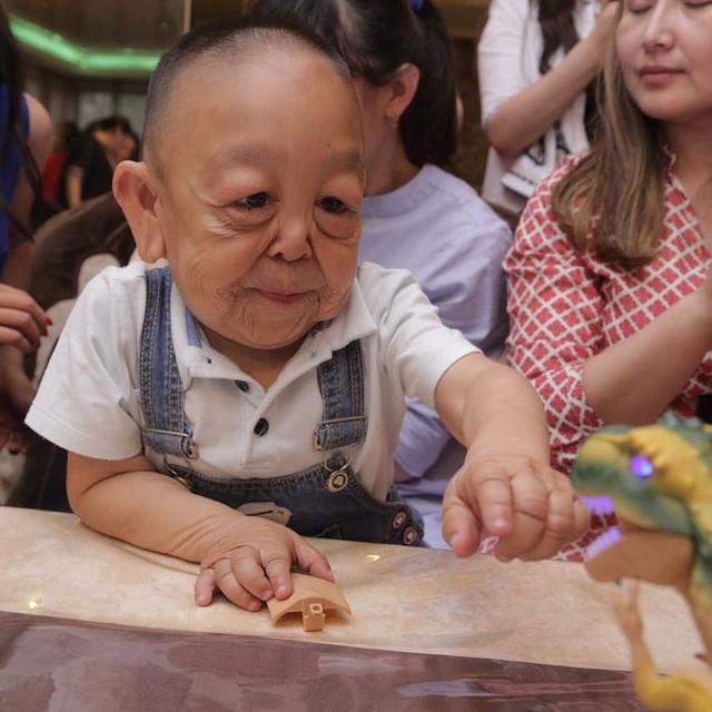 В Казахстане живет мальчик-«старик» с редким синдромом вялой кожи