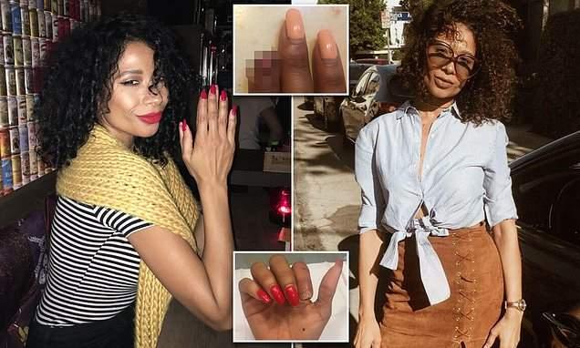 Благодаря новым технологиям у женщины отрос откушенный животным палец