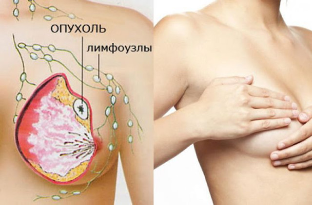 Национальный институт рака показывает, почему женщинам с раком молочной железы может не понадобиться химиотерапия
