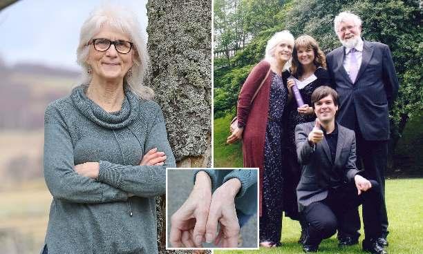 Шотландская бабушка никогда не чувствовала боли