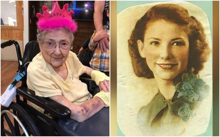 Женщина с зеркальным расположением органов прожила 99 лет