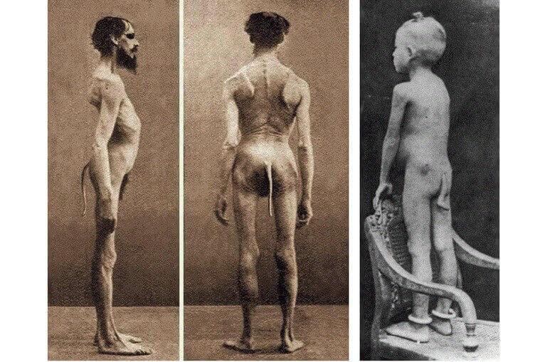 ДНК, кровь, резус-фактор, происхождение человека, гипотеза, эволюция