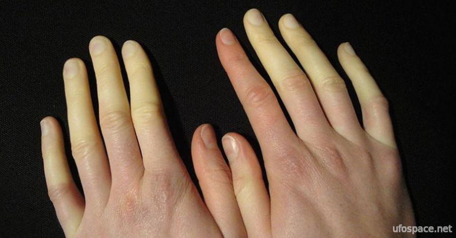 полезно знать, синдром Рейно, холодные ноги, холодные руки, ufospace