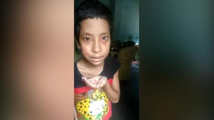 Восьмилетняя Девочка Начала Потеть И Плакать Кровью