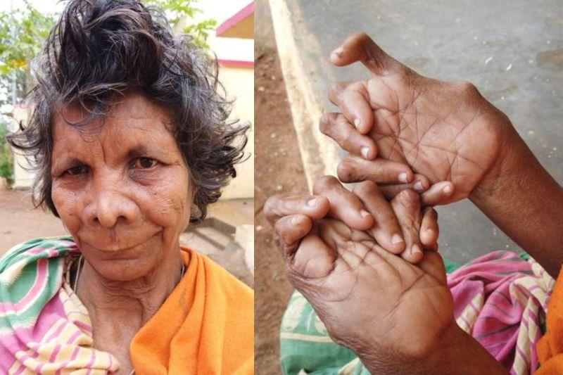 Женщину Считали Ведьмой Из-За 31 Пальца