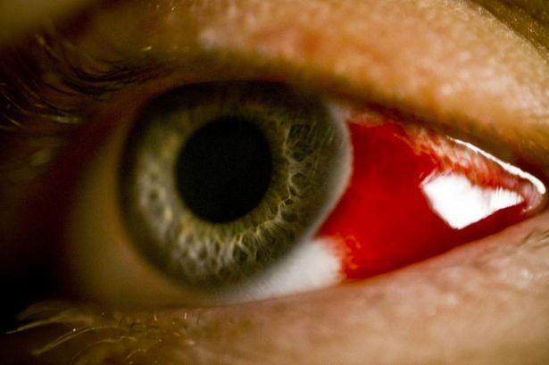 Эпидемия Х: В Эфиопии Люди Умирают От Кровоточащей Глазной Лихорадки
