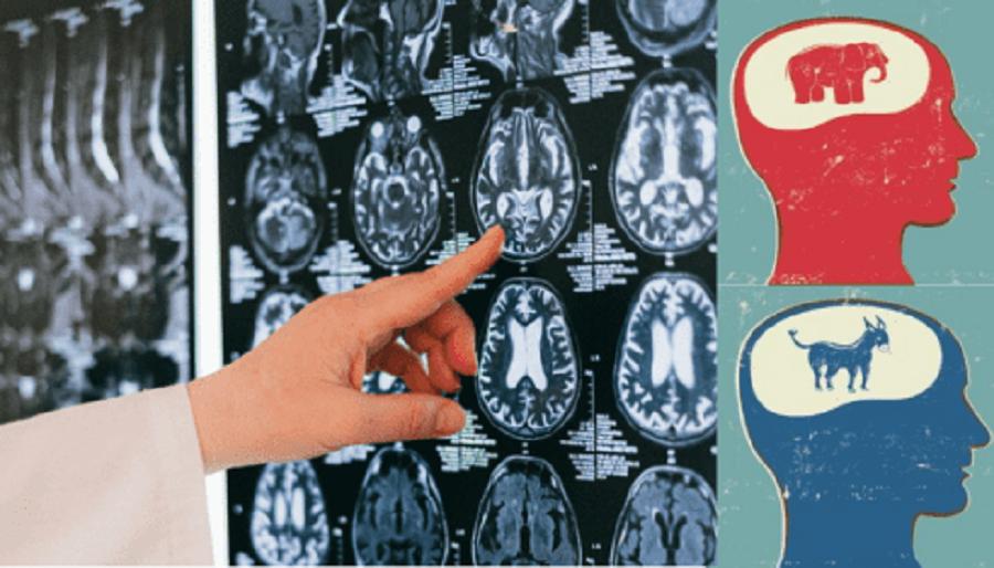 Политические взгляды определяет… анатомия мозга