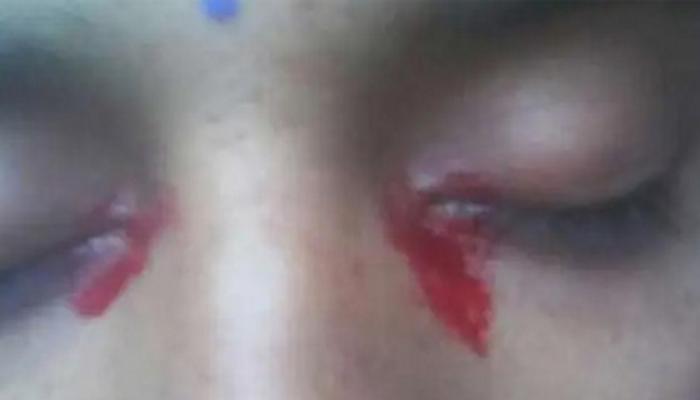 Женщина заплакала кровавыми слезами