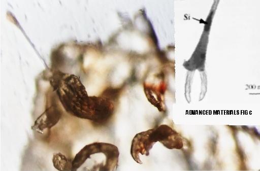 У НЕКОТОРЫХ ЭТО ВЫЗОВЕТ ШОК... ПОД МИКРОСКОПОМ.  Моргеллоновые живые нити-паразиты реагируют на мясо. (ВИДЕО)