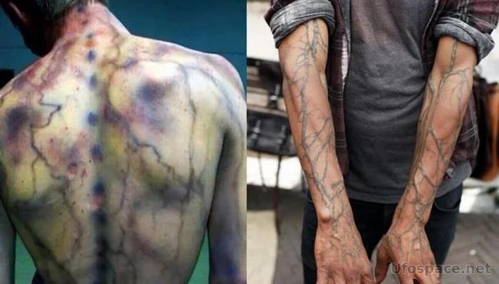 Керанография: Татуировку наносит молния