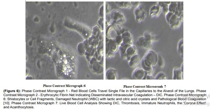 Ученые нашли в вакцинах графен, металл и даже колонию паразитов