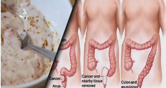 these-two-ingredients-remove-pounds-of-toxins-from-your-intestines