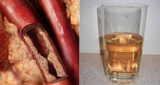drink-will-unclog-arteries-protects-heart-diseases