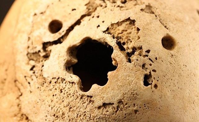 Трепанация поврежденной кости